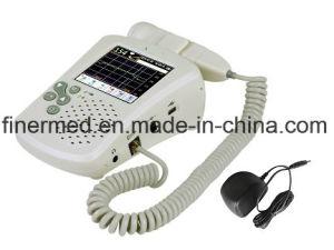 Fetal Vascular Ultrasound Doppler pictures & photos