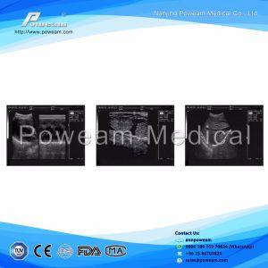 Laptop Color Doppler Ultrasound Scanner & Portable Ultrasound (WHYB2018) pictures & photos