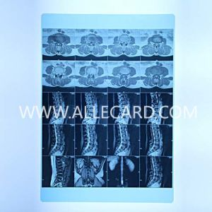 Blue Film Laser Priniting Pet pictures & photos