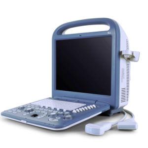 4D Ultrasound Medical Device Partable Doppler Scanner, USG Machine pictures & photos