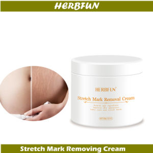 OEM/ODM Skin Cream Product for Stretch Mark Prevention and Removing Caused by Pregnancy