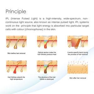2016 E-Light Shr IPL Hair Removal Skin Rejuvenation Beauty Equipment pictures & photos
