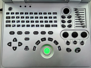 2D/3D Laptop Color Doppler Ultrasound Machine with Portable Doppler Ultrasound Machine pictures & photos