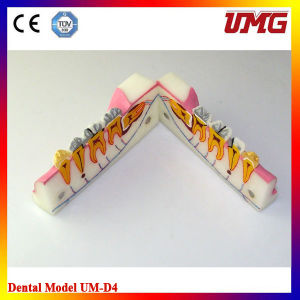 Health Teeth Material Sagitally Sectioneg Model pictures & photos