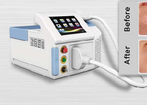 New Design Desk-Top 808nm Diode Laser Hair Removal pictures & photos
