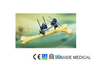 Baide Proximal Femur External Fixator
