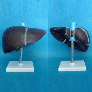 Medical Teaching Human Liver Anatomy Model (R100102) pictures & photos