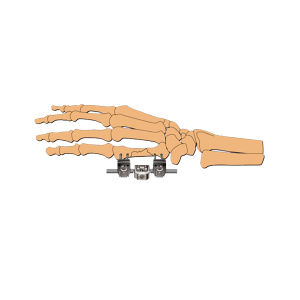 Orthopedic Surgical Mini-Horizontal Axis External Fixator pictures & photos