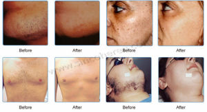 High Energy Shr IPL Laser Hair Removal New Model (SMQ-NYC3) pictures & photos