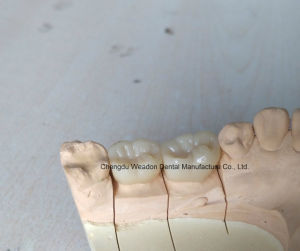 Zirconic Dental Service Center pictures & photos
