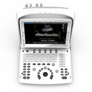 Portable Veterinary Ultrasound Scanner Eco3expertvet pictures & photos