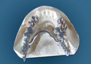 Cobalt and Chrome Partial with Strong Retention Made in China Dental Lab pictures & photos