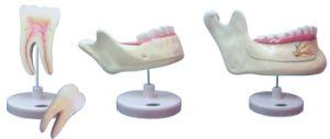 Dentes Molares Model/Dentes Decidui Model/Dentes Permanentes Model pictures & photos