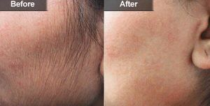 IPL for Hair Removal Skin Rejunevation Smq-Nyc FDA Medical CE Approved pictures & photos