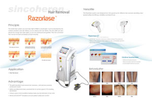 Speed 808nm Hair Removal Beauty Machine Clinic Use pictures & photos