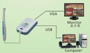 1.3 Mega Pixels CCD Dental Intra-Oral Dental Camera