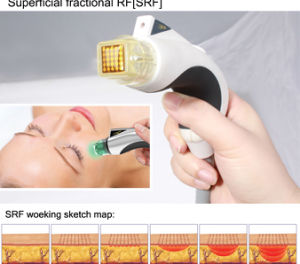 Anti-Wrinkle Eye Massager Face Lifting Body Building Matrix Fractional RF PDT Beauty Machine Mr20-1sp CE Factory for Sale pictures & photos