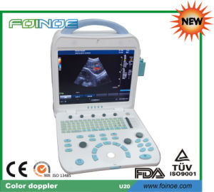 U20 New Model CE and FDA Approved Portable Ultrasound Machine Price pictures & photos