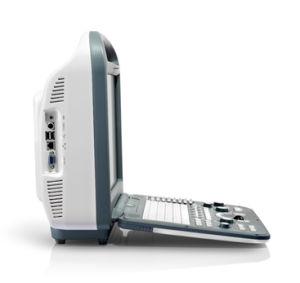 Big Promotion! $USD8, 880 Sonoscape S2 Convex + 4D Doppler Ultrasound Scanner pictures & photos