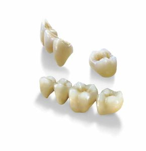 Dental All Ceramic Zerconia Crowns and Bridge or Veneers Onlay Inlays Supplies Produced in China Dental Laboratory pictures & photos