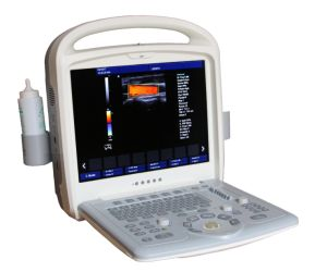 Resonable Price Portable Color Doppler Ultrasound System pictures & photos