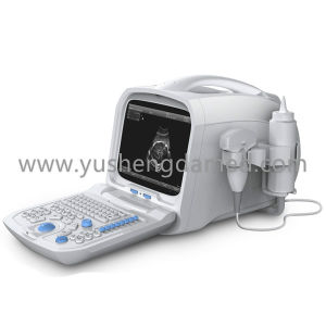 Ce SGS Hospital Products Abdominal Digital Portable Ultrasound Equipment Ysd1201 pictures & photos