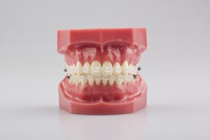 Orthodoncia Dental Orthodontic Easthetic Ceramic Bracket pictures & photos