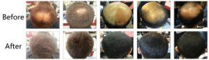 Customize Second Generation Keratin Hair Fibers in Bulk Kilogram (S06) pictures & photos