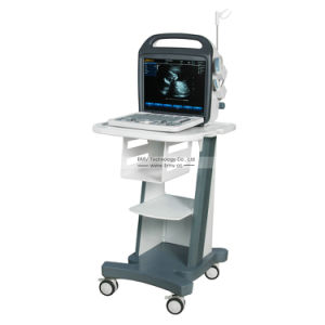 Medical Instrument Bcu-30 Color Doppler Diagnostic Ultrasound pictures & photos