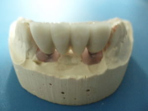 Dental CCM with All Kinds of Implants Made in China Dental Lab pictures & photos
