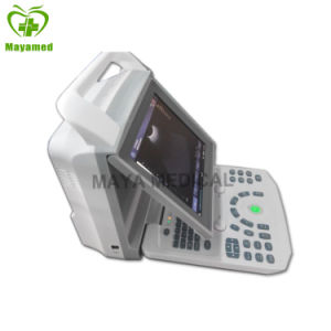 My-A026 All Digital Color Doppler System Diagnostic Portable Ultrsound Machine pictures & photos