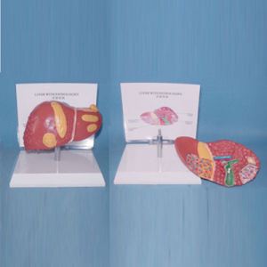 Human Pathological Liver Medical Teaching Anatomy Model (R100106) pictures & photos