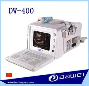 abortion machine