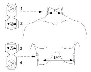 ECG Electrode Pads (Measure Cardiac Output) pictures & photos