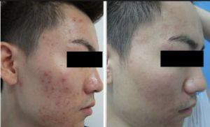 PDT LED Light Skin Rejuvenation Machine pictures & photos