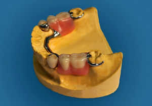 Co-Cr Plate Completion with Precious Attachments Made in China Dental Lab pictures & photos