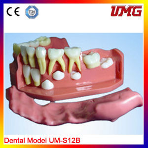 Dental Education Teeth Model for Wholesale pictures & photos