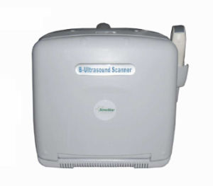 Portable Ultrasound Diagnosis B Scanner MFC-Ss6 (for human) pictures & photos