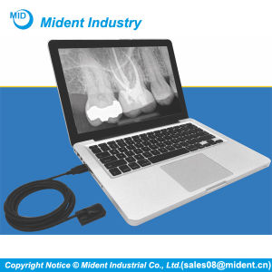 New Edleni Intra-Oral Digital Dental X Ray Sensor pictures & photos