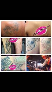 Portable Q-Switched ND: YAG Tattoo Removal Laser pictures & photos