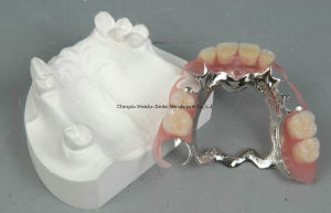 Dental Denture with Framework Finish From Chinese Lab pictures & photos