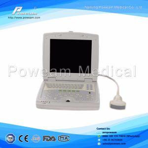 Advanced Laptop Color Doppler 4D Ultrasound Scanner/3D 4D Ultrasound Scanner (WHYB2018P) pictures & photos