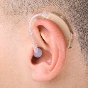 Hot Sales Bte Analog Hearing Aid Sensorineural Hearing Loss pictures & photos