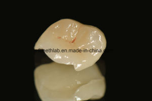 All Ceramic Inlays and Onlays in Dentistry pictures & photos