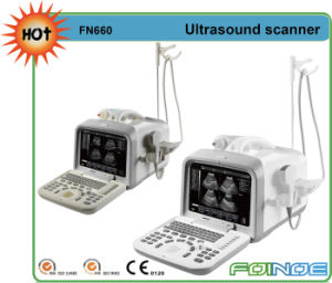 Fn660 Full Digital B Model China B Ultrasound Scanner pictures & photos