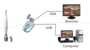 Wireless Intraoral Dental Camera Dental Equipment with CE FDA pictures & photos