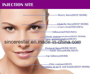 Long Duration Hyaluronic Acid Dermal Filler for Anti Wrinkle pictures & photos