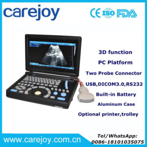 New Laptop Ultrasound Machine/Scanner Ultrasonograph for Cardiac Urology Measurement Convex Linear Micro-Convex Transvaginal Rectal Probe Option-Candice pictures & photos