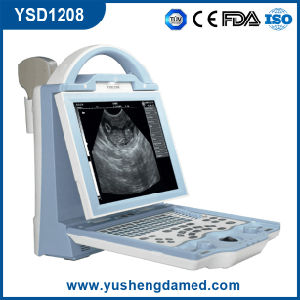 Ysd1208 Full Digital Handheld Laptop Ultrasound Scanner Ce ISO Approved pictures & photos