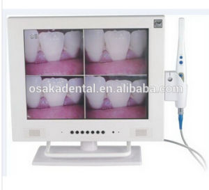 15 Inch Screen Dental Intraoral Camera with Wi-Fi pictures & photos